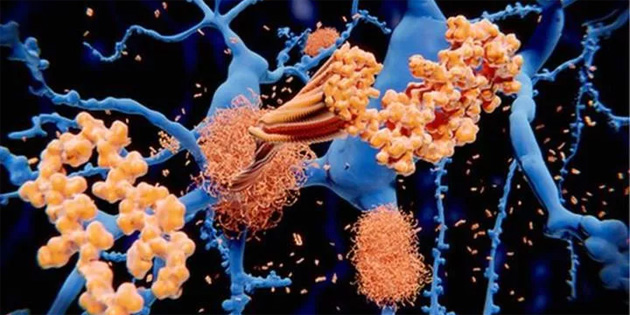 Basit bir kan testi ile Alzheimer teşhisi konulabilecek