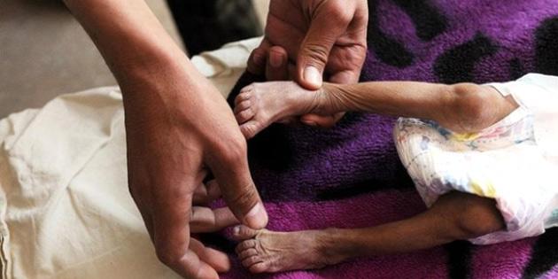 Yemen'deki difteri salgınında ölenlerin sayısı 34'e yükseldi