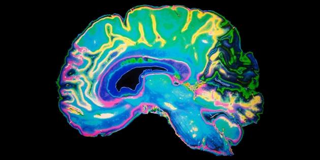 Beyin dalgalarının takibi depresyon tedavisine yardımcı olabilir