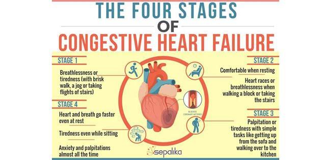 Yapay zeka kalp yetmezliğini tespit edebilecek