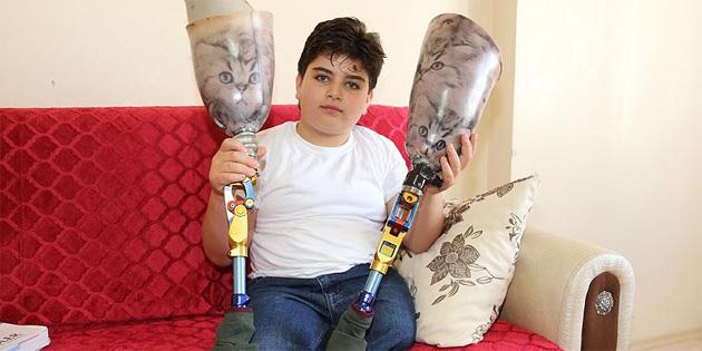 5 yıl önce takılan protezleri artık yürütmüyor