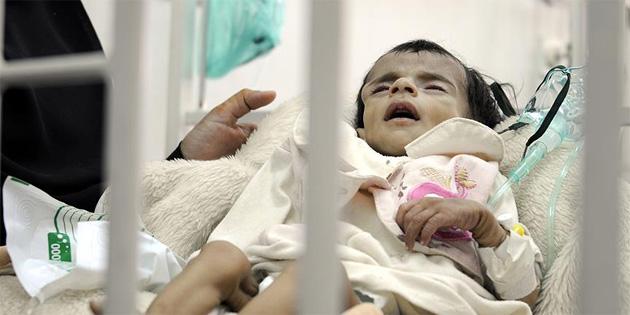 Yemen'de yarım milyon çocuk ölüm tehlikesiyle karşı karşıya
