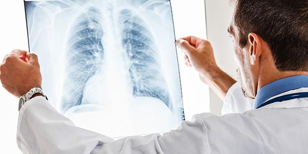 """""""Sigara içenlerde akciğer kanseri riski 20 kat fazla'"""